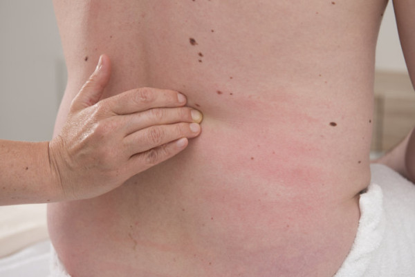 Massage Michaela Bindegewebsmassage